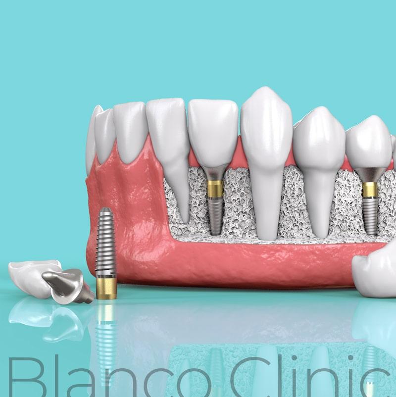 имплантация зубов в стоматологии