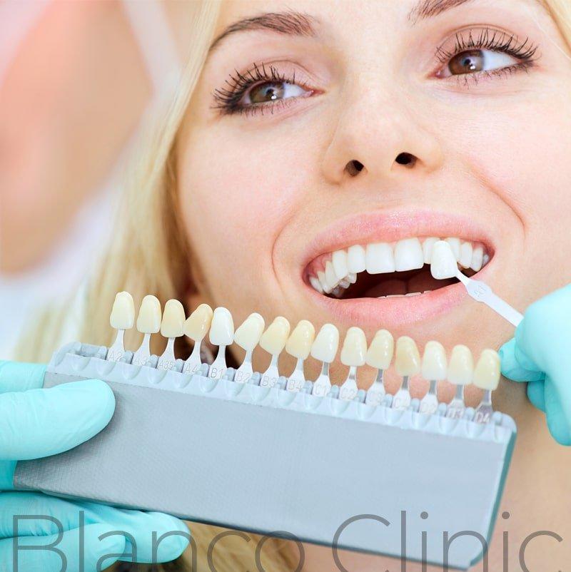 Реставрация и восстановление зубов