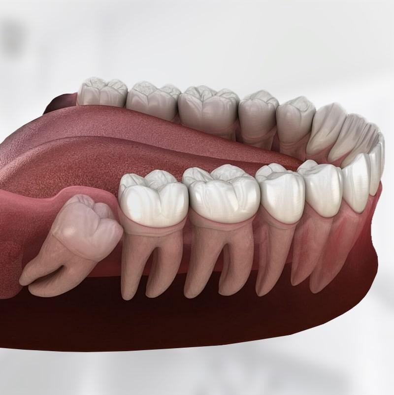 зубы мудрости - удаление в стоматологии